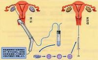 体外受精-胚移植